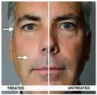 LOOK 10YEARS YOUNGER ,  NEW NHT WRINKLE FREE GUARANTEED IN SECONDS