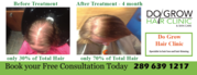 Advanced Laser Hair Therapy